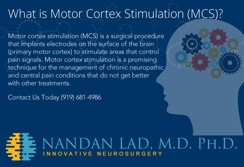Motor Cortex Stimulation